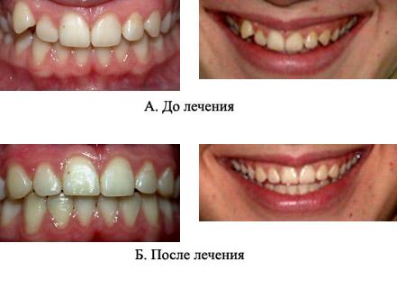 http://s2.uploads.ru/t/FSNWv.jpg