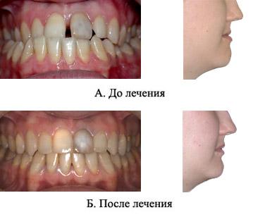 http://s2.uploads.ru/t/ILDjR.jpg