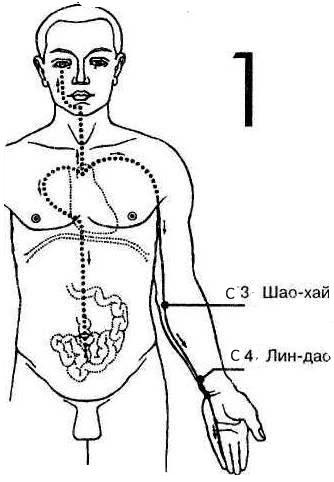 полечимся ру вопросы и ответы по пневмонии