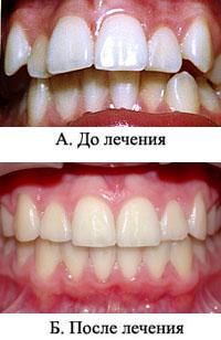 http://s2.uploads.ru/t/SQwi7.jpg