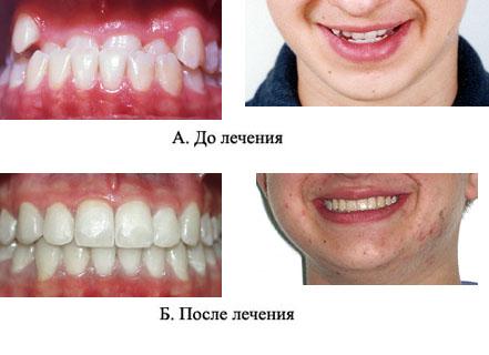 http://s2.uploads.ru/t/VR5uL.jpg