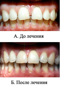 http://s2.uploads.ru/t/mNMcg.jpg