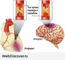 http://s2.uploads.ru/t/yg9kJ.jpg