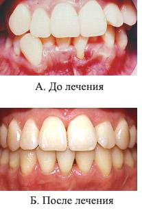 http://s2.uploads.ru/t/zhokm.jpg